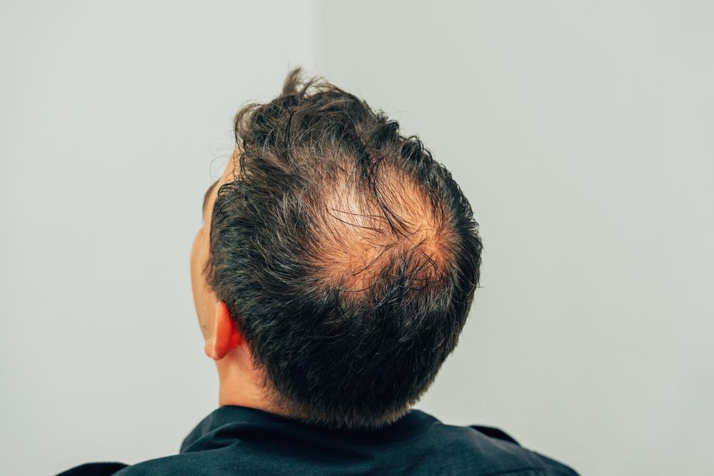 Conheça os tratamentos para Calvície (Alopecia)